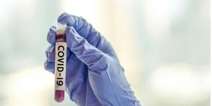 1 Pasien Positif Covid 19 di Kota Bekasi Dinyatakan Sembuh